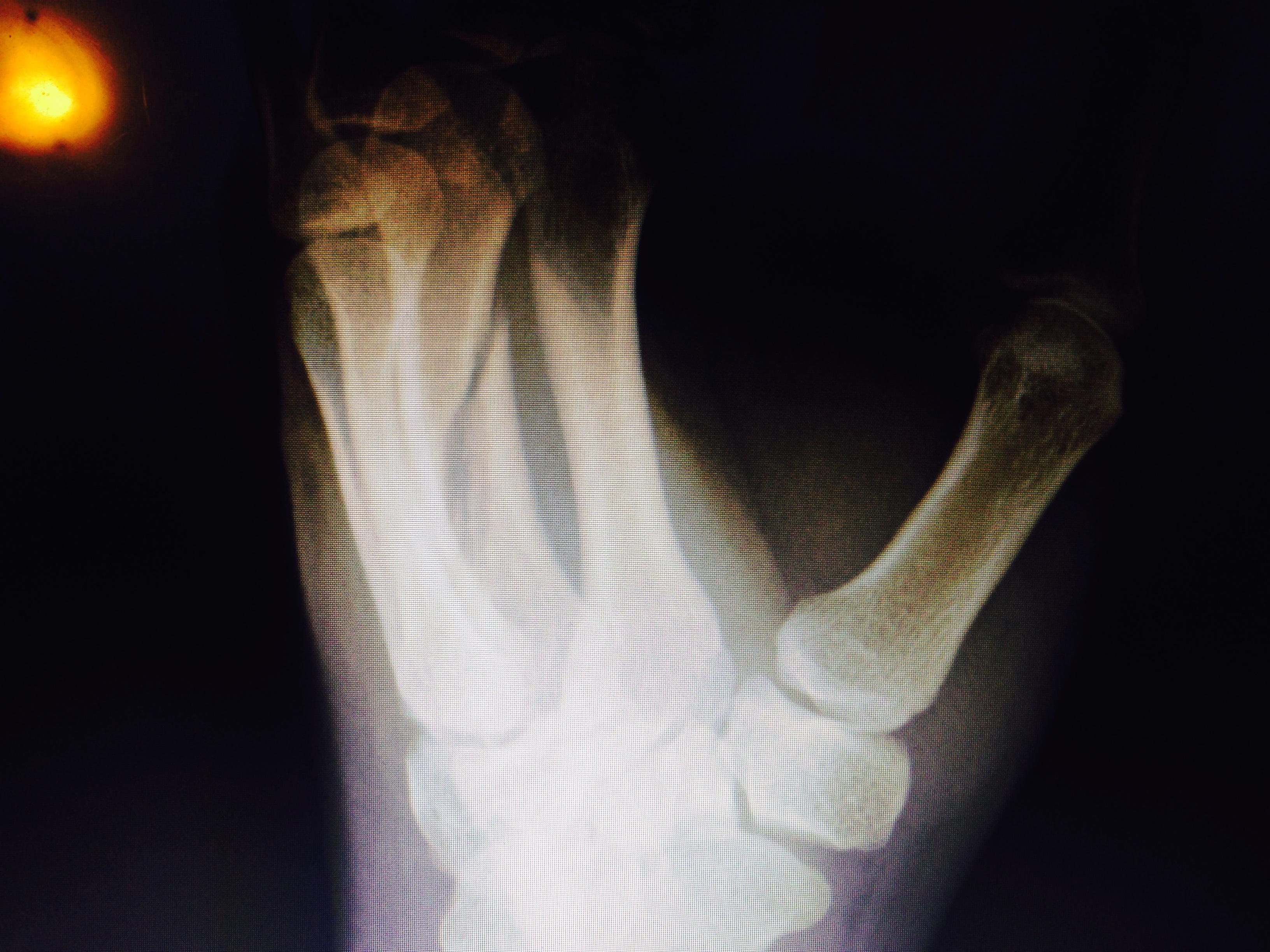 x ray daniel fernandes